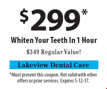 $299* Whiten Your Teeth In 1 Hour, $349 Regular Value!. *Must present this coupon. Not valid with other offers or prior services. Expires 5-12-17.