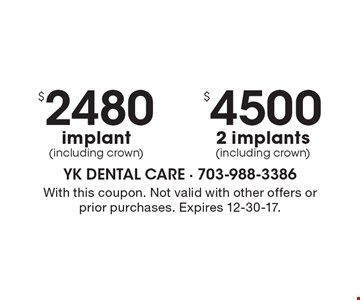 $4500 2 implants (including crown). $2480 implant (including crown). With this coupon. Not valid with other offers or prior purchases. Expires 12-30-17.