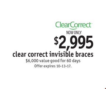 Now only $2,995 clear correct invisible braces. $6,000 value good for 60 days. Offer expires 10-13-17.