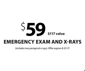 $59 emergency exam and x-rays. $117 value. (includes two periapical x-rays). Offer expires 8-25-17.