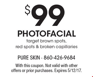 $99 PHOTOFACIAL. Target brown spots, red spots & broken capillaries. With this coupon. Not valid with other offers or prior purchases. Expires 5/12/17.