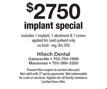 $2750 implant special. Includes 1 implant, 1 abutment & 1 crown applied for cash patient only. No limit. Reg. $4,350. Present this coupon to receive discount. Not valid with 3rd party payments. Not redeemable for cash or services. Applies for all family members. Limited time offer.