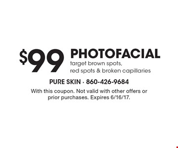 $99 PHOTOFACIAL target brown spots, red spots & broken capillaries. With this coupon. Not valid with other offers or prior purchases. Expires 6/16/17.