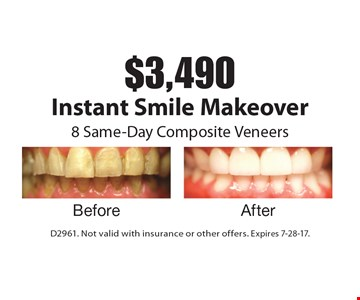$3,490 Instant Smile Makeover. 8 Same-Day Composite Veneers. D2961. Not valid with insurance or other offers. Expires 7-28-17.