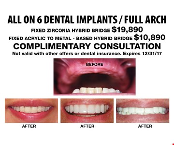 All on 6 dental implants / full arch. FIXED ZIRCONIA HYBRID BRIDGE $19,890, FIXED ACRYLIC TO METAL - BASED HYBRID BRIDGE $10,890. COMPLIMENTARY CONSULTATION. Not valid with other offers or dental insurance. Expires 12/31/17