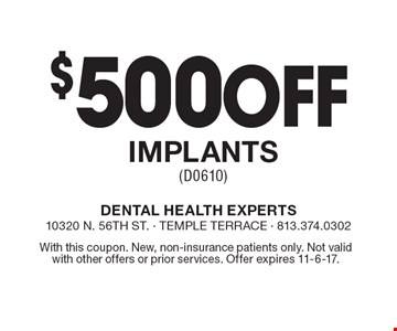 $500 Off Implants (D0610). With this coupon. New, non-insurance patients only. Not valid with other offers or prior services. Offer expires 11-6-17.