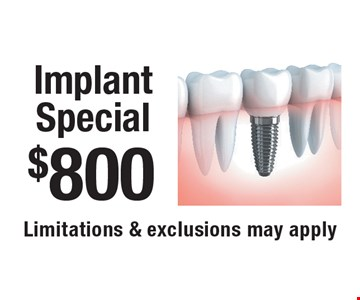 $800 Implant Special. Limitations & exclusions may apply. New patients only, not to be combined with any other offer, exclusions and limitations apply. Offer expires 12-4-17.