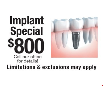 $800 Implant Special, call our office for details. Limitations & exclusions may apply. New patients only, not to be combined with any other offer, exclusions and limitations apply. Offer expires 12-18-17.