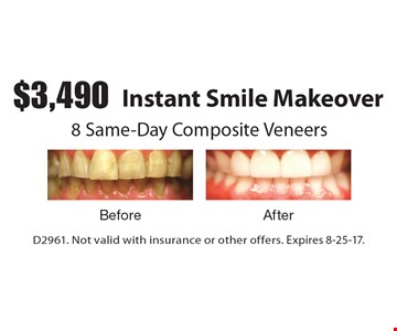$3,490 Instant Smile Makeover. 8 Same-Day Composite Veneers. D2961. Not valid with insurance or other offers. Expires 8-25-17.