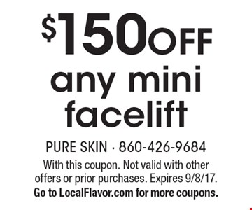 $150 off any mini facelift. With this coupon. Not valid with other offers or prior purchases. Expires 9/8/17. Go to LocalFlavor.com for more coupons.