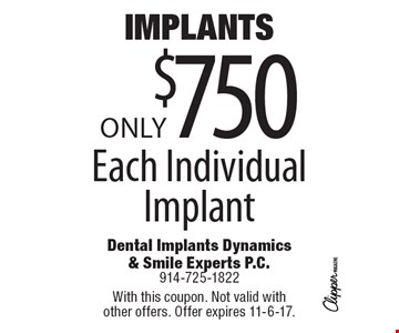 Implants, Only $750 Each Individual Implant. With this coupon. Not valid with other offers. Offer expires 11-6-17.