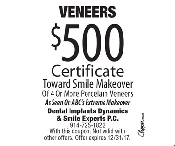 VENEERS $500 Certificate Toward Smile Makeover of 4 or More Porcelain Veneers. As Seen On ABC's Extreme Makeover. With this coupon. Not valid with other offers. Offer expires 12/31/17.