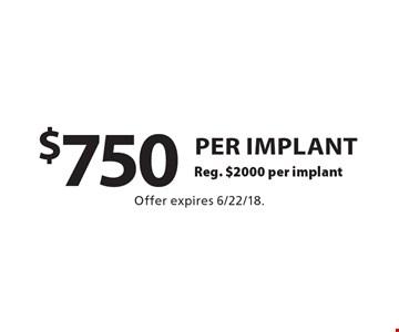 $750 per implant Reg. $2000 per implant. Offer expires 6/22/18.