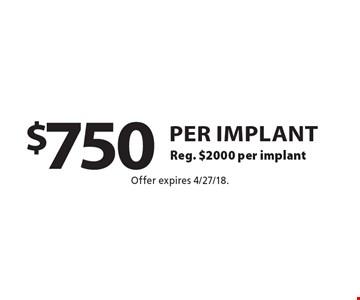 $750 per implant. Reg. $2000 per implant. Offer expires 4/27/18.