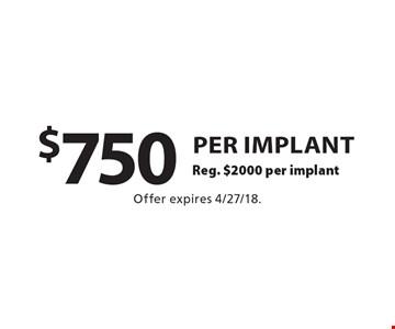 $750 per implant Reg. $2000 per implant. Offer expires 4/27/18.