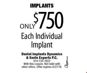 Implants. Only $750 Each Individual Implant. With this coupon. Not valid with other offers. Offer expires 4/27/18.