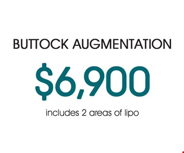 Buttock Augmentation $6,900 Includes 2 areas of Lipo