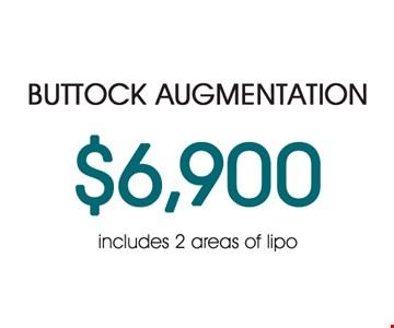 Buttock Augmentation $6,900 Includes 2 areas of Lipo