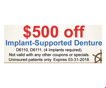$500 OFF implant- supported denture
