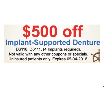 $500 implant-supported denture