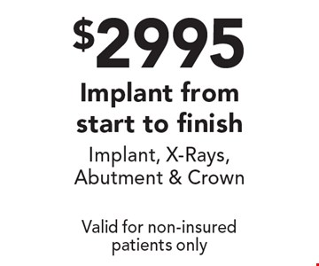 $2995 Implant from start to finish. Implant, x-rays, abutment & crown. Valid for non-insured patients only.