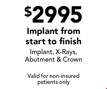 $2995 Implant from start to finish Implant, X-Rays, Abutment & Crown. Valid for non-insured patients only.