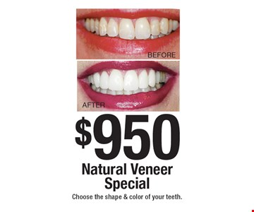 $950 Natural Veneer Special Choose the shape & color of your teeth. Not to be combined with any other offer, exclusions and limitations apply. Offer expires 5-7-18.
