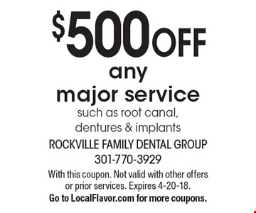 $500 OFF any major service such as root canal, dentures & implants. With this coupon. Not valid with other offers or prior services. Expires 4-20-18. Go to LocalFlavor.com for more coupons.