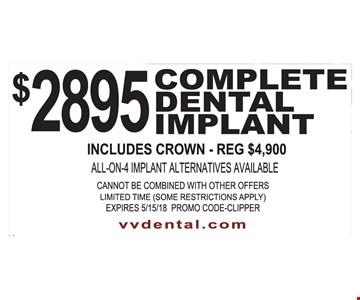 $2895 Complete Dental Implant