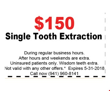 $150 SINGLE TOOTH EXTRACTION