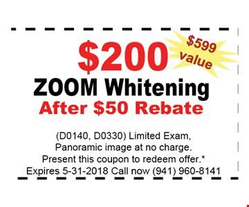 $200 ZOOM WHITENING AFTER $50 REBATE