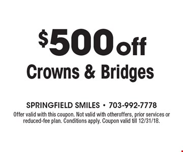 $500off Crowns & Bridges. Offer valid with this coupon. Not valid with otheroffers, prior services or reduced-fee plan. Conditions apply. Coupon valid till 12/31/18.
