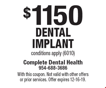 $1150 dental implant conditions apply (6010). With this coupon. Not valid with other offers or prior services. Offer expires 12-16-19.