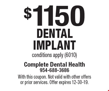 $1150 dental implant. Conditions apply (6010). With this coupon. Not valid with other offers or prior services. Offer expires 12-30-19.