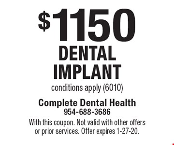 $1150 dental implant conditions apply (6010). With this coupon. Not valid with other offers or prior services. Offer expires 1-27-20.