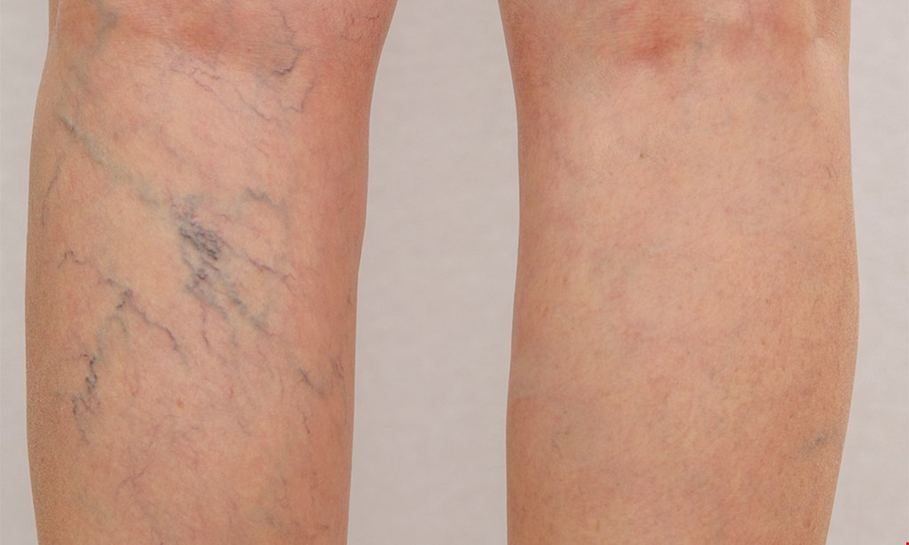 Product image for Jacksonville Vein Specialists - Atlantic Blvd $74.50 for one 20-minute Sclerotherapy Vein Session ($200 value)