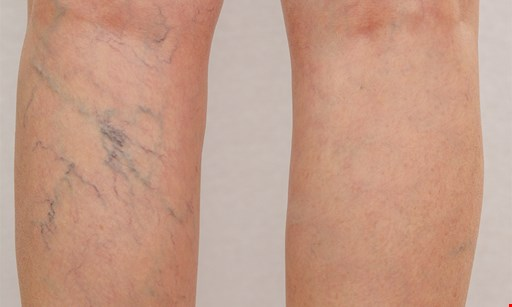 Product image for Jacksonville Vein Specialists - Bartram $74.50 for $200 - one 20 minute Sclerotherapy Vein Session ($200 value)