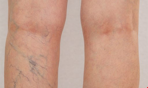 Product image for Palm Coast Vein Specialists $74.50 for one 20-minute Sclerotherapy Vein Session ($200 value)