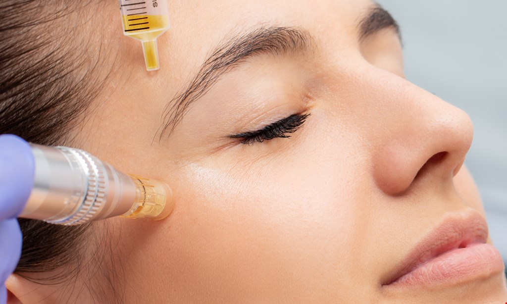 Product image for Porefecting Skin Solutions $158 for Microneedling - Face and neck included, and a Jessner peel ($318 value)