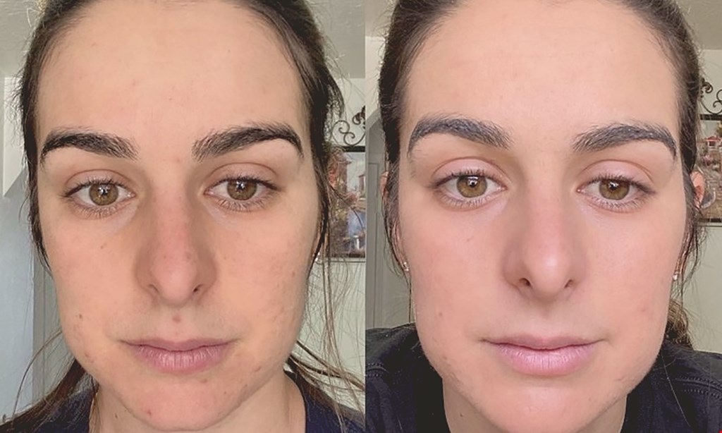 Product image for Jax Skin And Laser, LLC $200 For 1 Session Micro-Laser Combination Treatment (Reg. $400)