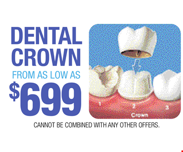 DENTAL CROWN FROM AS LOW AS $699. CANNOT BE COMBINED WITH ANY OTHER OFFERS.