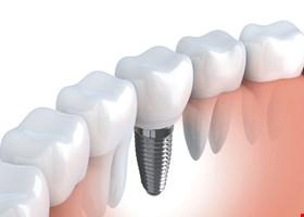 Governor Dental