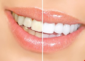 Spectrum Dental