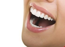 Dental Options